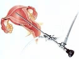 hysteroscopy, vagina, rahim, leher rahim, uterus, serviks.